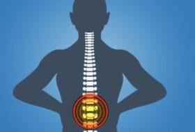 Bolečine v križu – konkretne rešitve iz prakse Mehanika hrbta